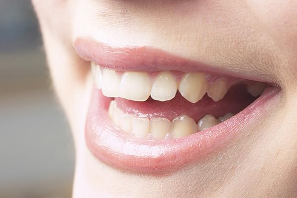 怪我・事故で抜けた歯を元に戻す方法です