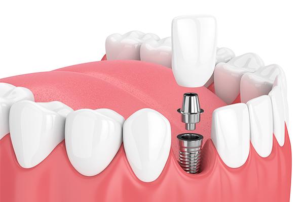 骨に問題がなければ抜歯よりも簡単